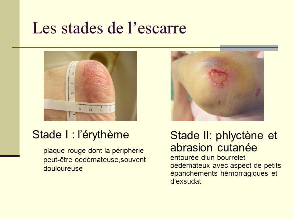 Les stades de lescarre Stade I : lérythème plaque rouge dont la périphérie peut-être oedémateuse,souvent douloureuse Stade II: phlyctène et abrasion c
