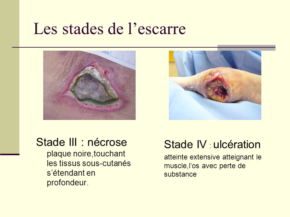 Les stades de lescarre Stade III : nécrose plaque noire,touchant les tissus sous-cutanés sétendant en profondeur. Stade IV : ulcération atteinte exten