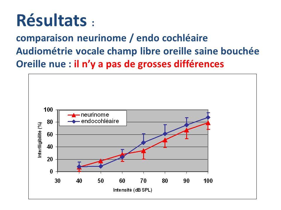 Résultats : comparaison neurinome / endo cochléaire Audiométrie vocale champ libre oreille saine bouchée Oreille nue : il ny a pas de grosses différen