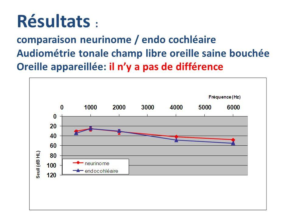 Résultats : comparaison neurinome / endo cochléaire Audiométrie tonale champ libre oreille saine bouchée Oreille appareillée: il ny a pas de différenc
