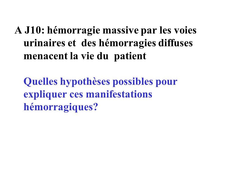 A J10: hémorragie massive par les voies urinaires et des hémorragies diffuses menacent la vie du patient Quelles hypothèses possibles pour expliquer c