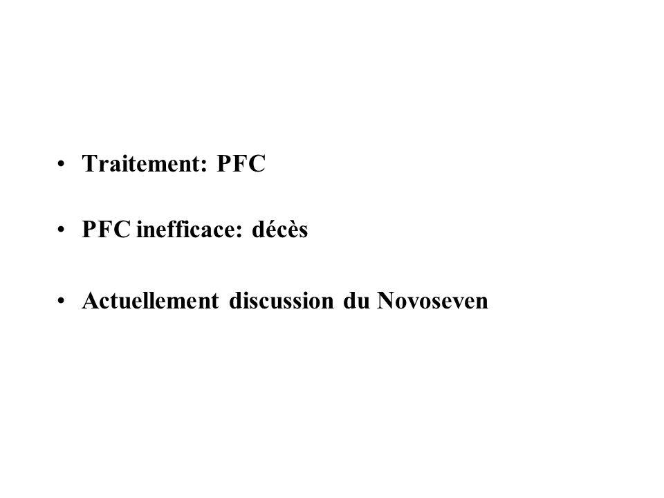 Traitement: PFC PFC inefficace: décès Actuellement discussion du Novoseven