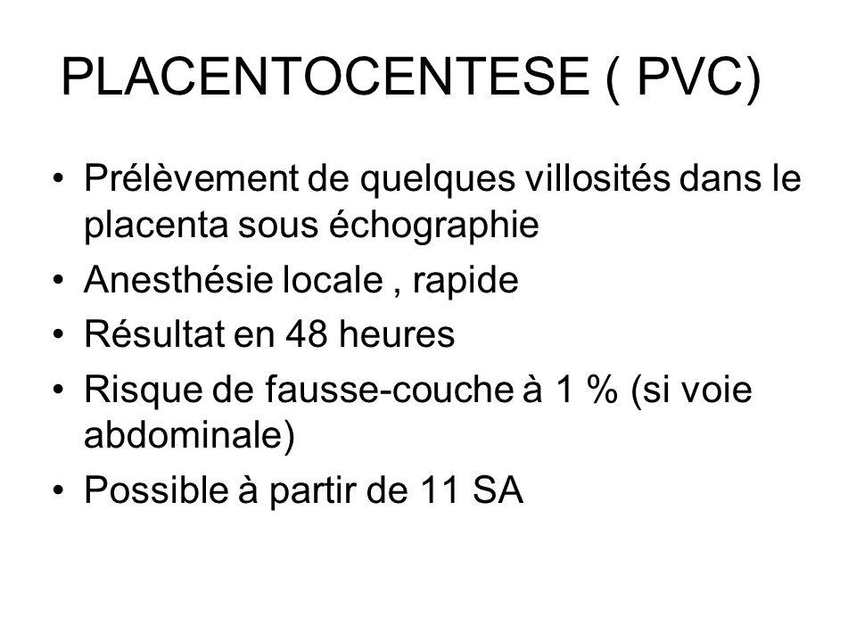 PLACENTOCENTESE ( PVC) Prélèvement de quelques villosités dans le placenta sous échographie Anesthésie locale, rapide Résultat en 48 heures Risque de