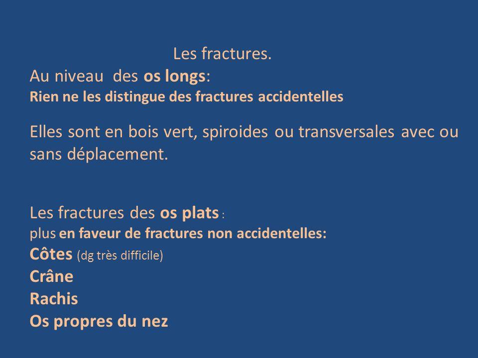 Les fractures. Au niveau des os longs: Rien ne les distingue des fractures accidentelles Elles sont en bois vert, spiroides ou transversales avec ou s