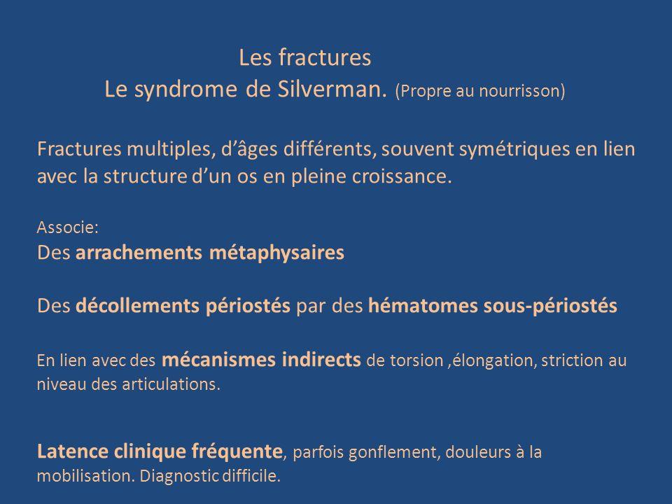 Les fractures Le syndrome de Silverman. (Propre au nourrisson) Fractures multiples, dâges différents, souvent symétriques en lien avec la structure du