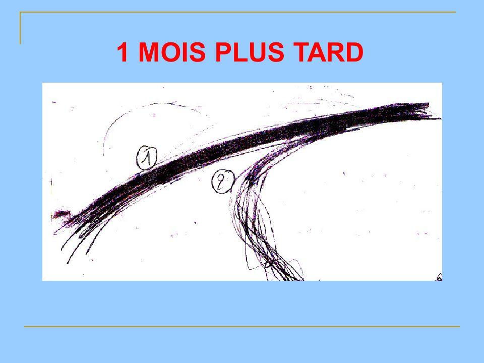 1 MOIS PLUS TARD