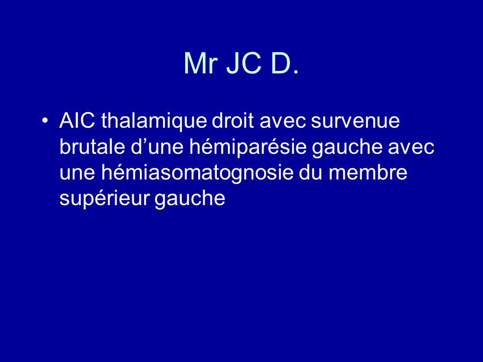 Mr JC D. AIC thalamique droit avec survenue brutale dune hémiparésie gauche avec une hémiasomatognosie du membre supérieur gauche