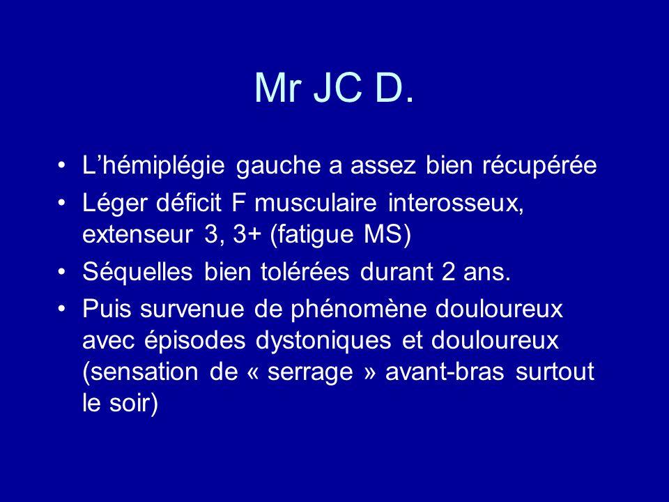 Mr JC D. Lhémiplégie gauche a assez bien récupérée Léger déficit F musculaire interosseux, extenseur 3, 3+ (fatigue MS) Séquelles bien tolérées durant