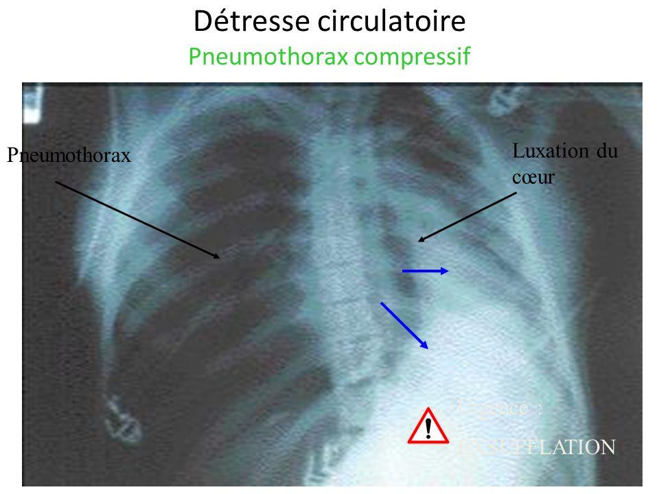 Détresse circulatoire Pneumothorax compressif Pneumothorax Luxation du cœur Urgence : EXSUFFLATION