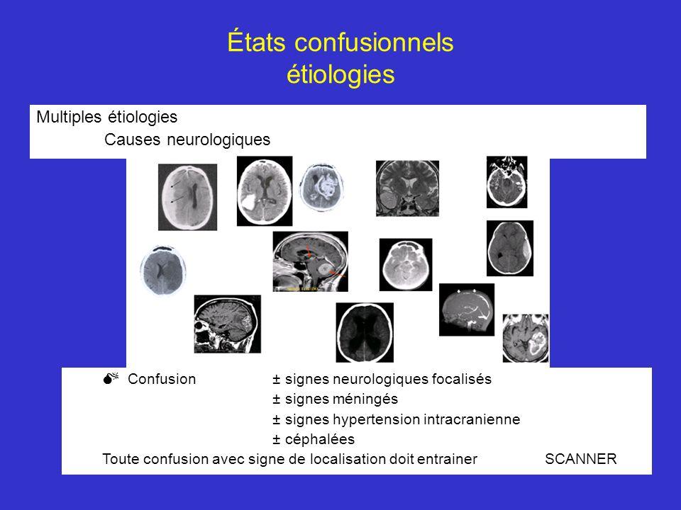 États confusionnels étiologies Multiples étiologies Causes neurologiques Confusion ± signes neurologiques focalisés ± signes méningés ± signes hyperte