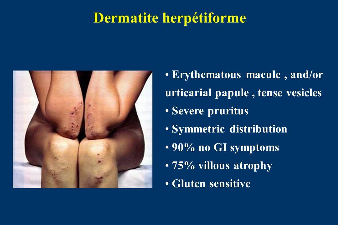 Dermatite herpétiforme Erythematous macule, and/or urticarial papule, tense vesicles Severe pruritus Symmetric distribution 90% no GI symptoms 75% villous atrophy Gluten sensitive