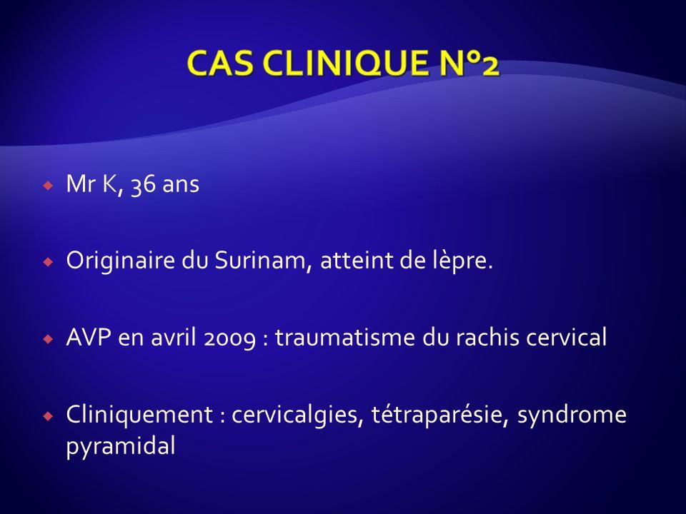 Mr K, 36 ans Originaire du Surinam, atteint de lèpre. AVP en avril 2009 : traumatisme du rachis cervical Cliniquement : cervicalgies, tétraparésie, sy