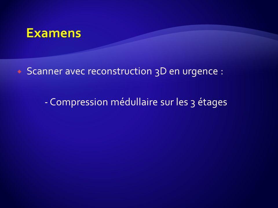 Scanner avec reconstruction 3D en urgence : - Compression médullaire sur les 3 étages