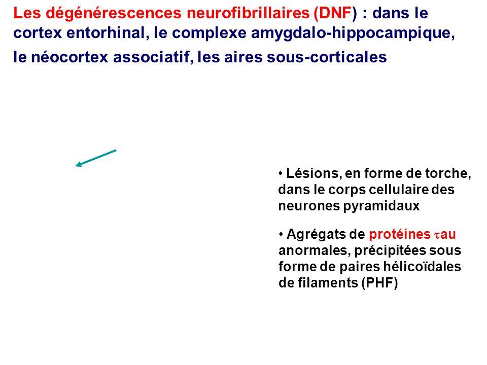 Les dégénérescences neurofibrillaires (DNF) : dans le cortex entorhinal, le complexe amygdalo-hippocampique, le néocortex associatif, les aires sous-c
