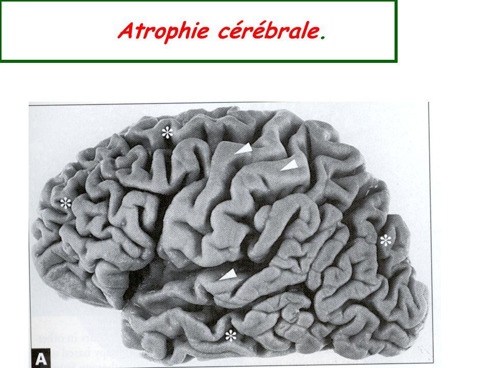 Atrophie cérébrale.