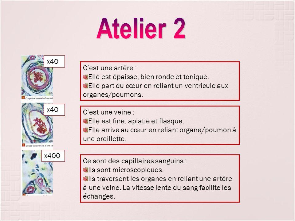 x40 x400 Cest une artère : Elle est épaisse, bien ronde et tonique. Elle part du cœur en reliant un ventricule aux organes/poumons. Cest une veine : E