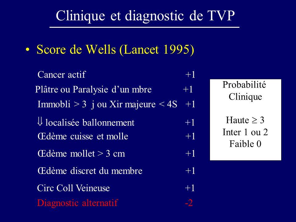 Clinique et diagnostic de TVP Score de Wells (Lancet 1995) Cancer actif +1 Plâtre ou Paralysie dun mbre+1 Immobli > 3 j ou Xir majeure < 4S+1 Œdème cu