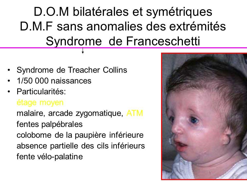 D.O.M bilatérales et symétriques D.M.F sans anomalies des extrémités Syndrome de Franceschetti Syndrome de Treacher Collins 1/50 000 naissances Partic