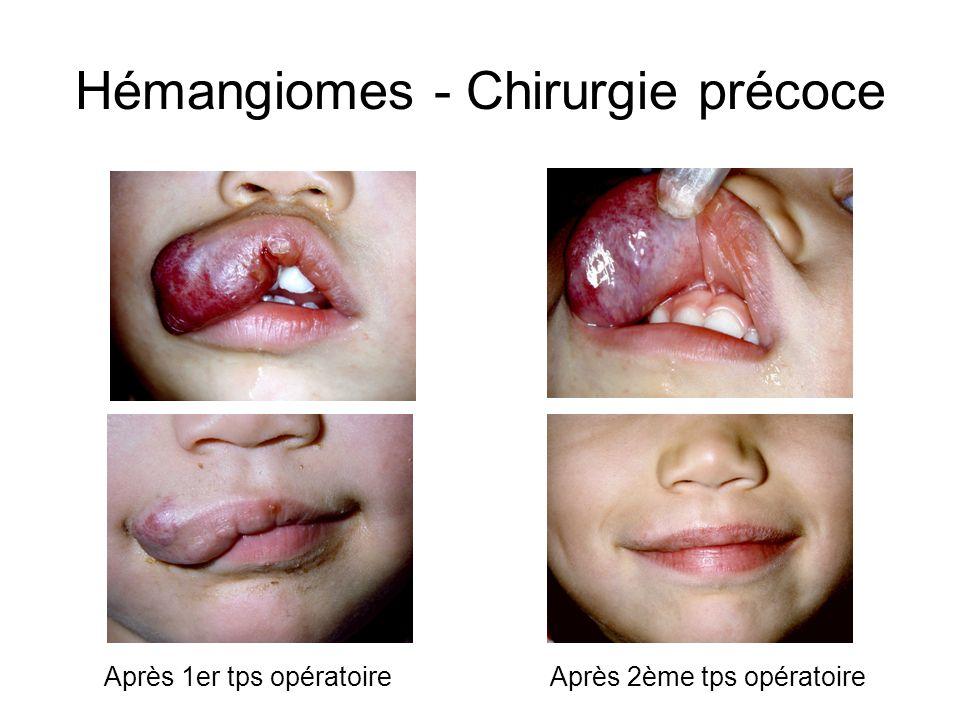 Hémangiomes - Chirurgie précoce Après 1er tps opératoireAprès 2ème tps opératoire