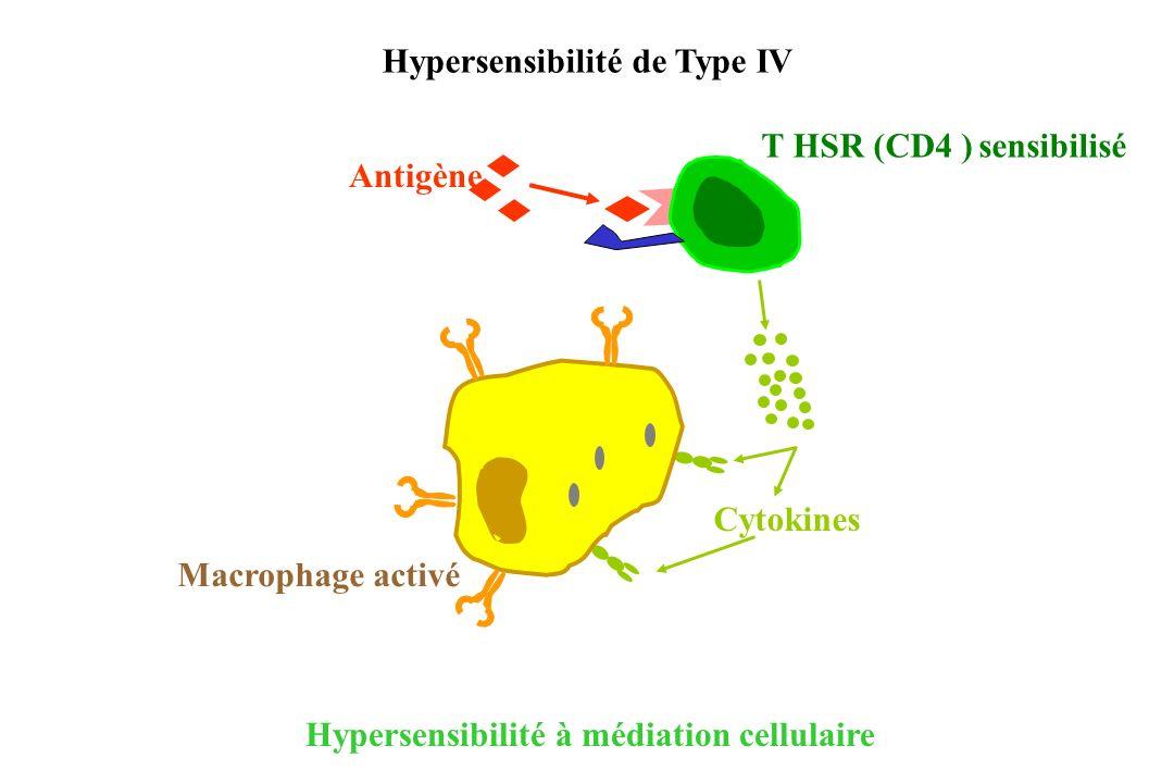 Hypersensibilité à médiation cellulaire Cytokines Antigène T HSR (CD4 ) sensibilisé Macrophage activé Hypersensibilité de Type IV