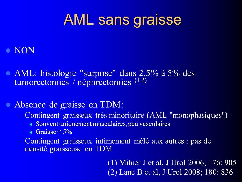 AML sans graisse NON AML: histologie