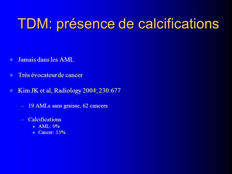 TDM: présence de calcifications Jamais dans les AML Très évocateur de cancer Kim JK et al, Radiology 2004; 230:677 – 19 AMLs sans graisse, 62 cancers