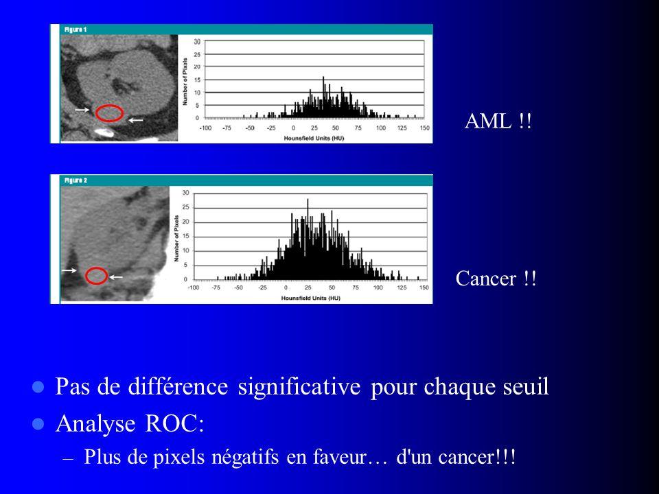 Pas de différence significative pour chaque seuil Analyse ROC: – Plus de pixels négatifs en faveur… d'un cancer!!! AML !! Cancer !!