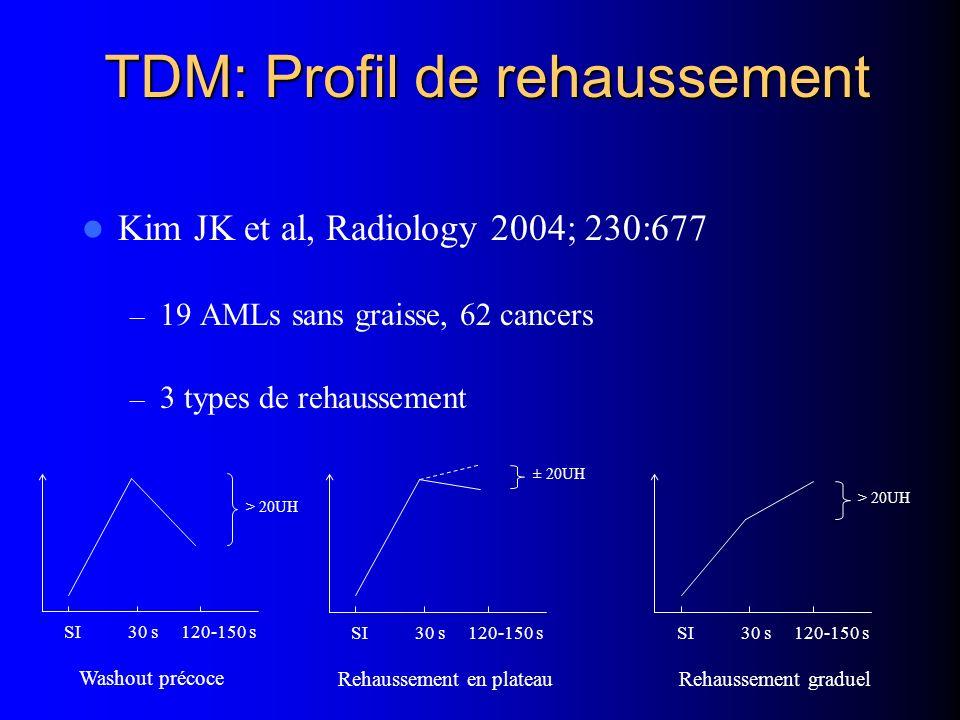 TDM: Profil de rehaussement Kim JK et al, Radiology 2004; 230:677 – 19 AMLs sans graisse, 62 cancers – 3 types de rehaussement SI 30 s 120-150 s > 20U