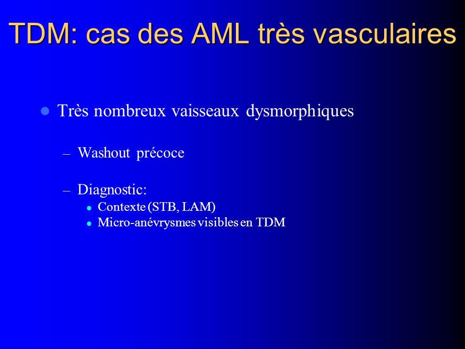 TDM: cas des AML très vasculaires Très nombreux vaisseaux dysmorphiques – Washout précoce – Diagnostic: Contexte (STB, LAM) Micro-anévrysmes visibles