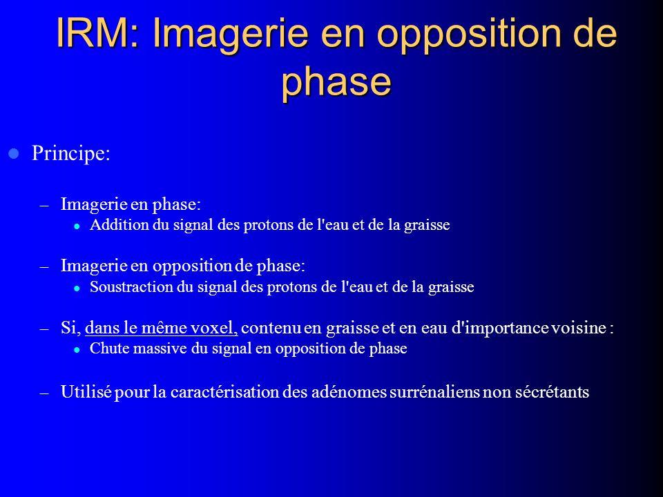 IRM: Imagerie en opposition de phase Principe: – Imagerie en phase: Addition du signal des protons de l'eau et de la graisse – Imagerie en opposition