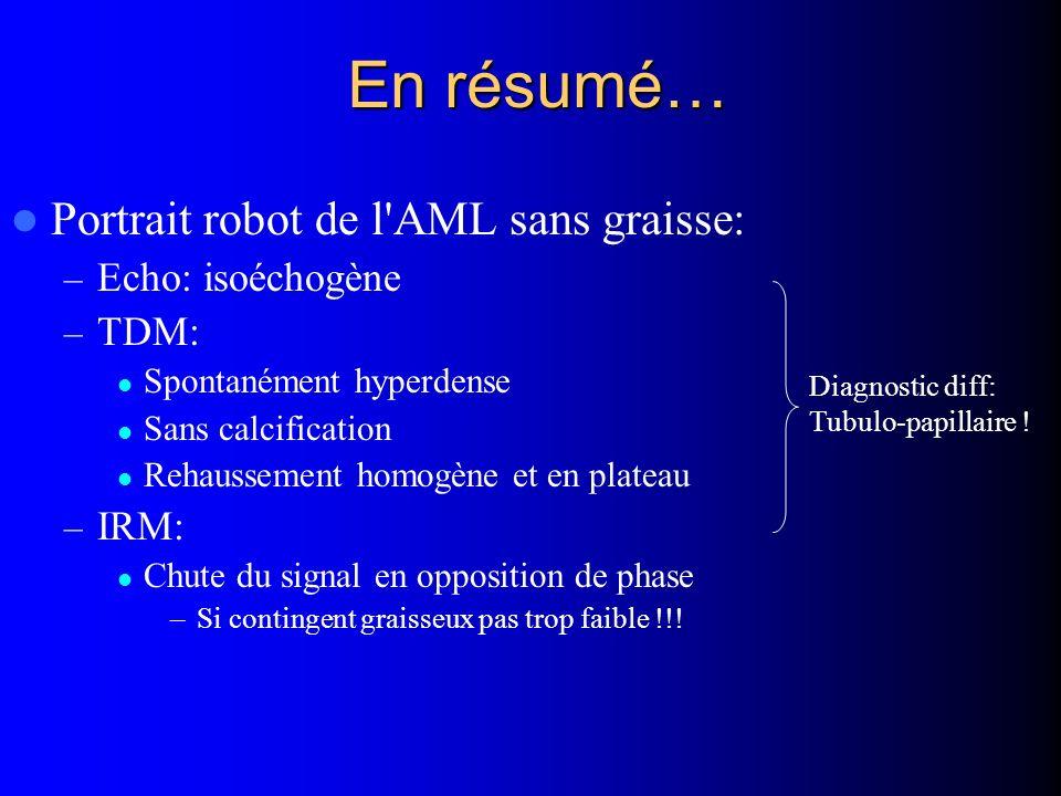 En résumé… Portrait robot de l'AML sans graisse: – Echo: isoéchogène – TDM: Spontanément hyperdense Sans calcification Rehaussement homogène et en pla