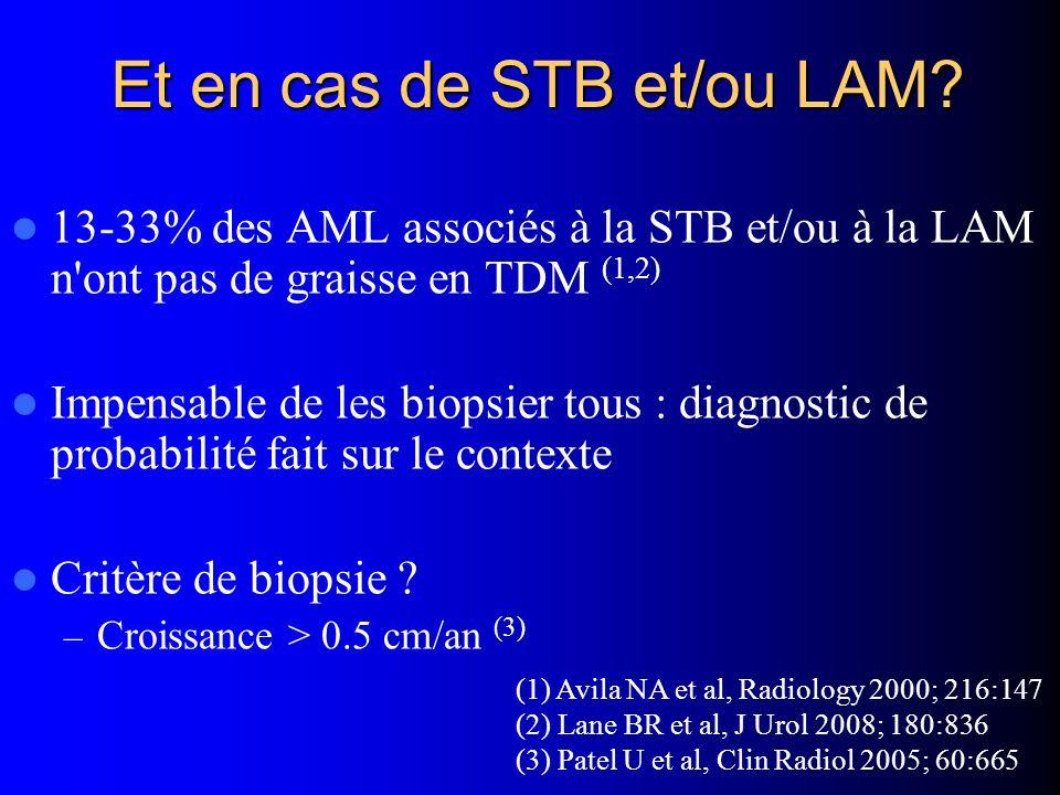 Et en cas de STB et/ou LAM? 13-33% des AML associés à la STB et/ou à la LAM n'ont pas de graisse en TDM (1,2) Impensable de les biopsier tous : diagno