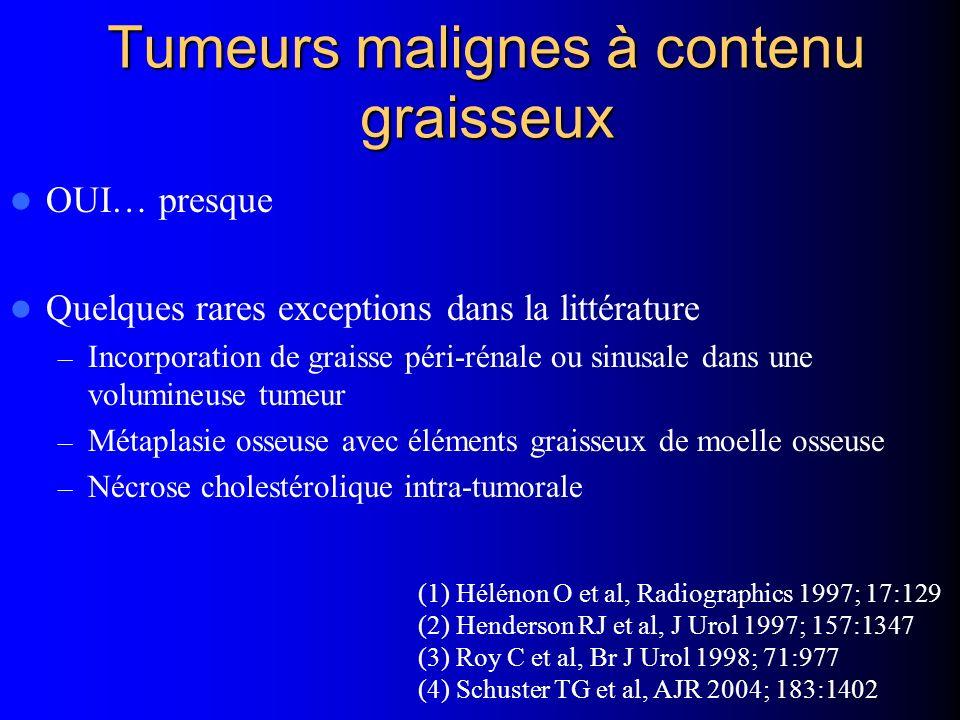 Tumeurs malignes à contenu graisseux OUI… presque Quelques rares exceptions dans la littérature – Incorporation de graisse péri-rénale ou sinusale dan