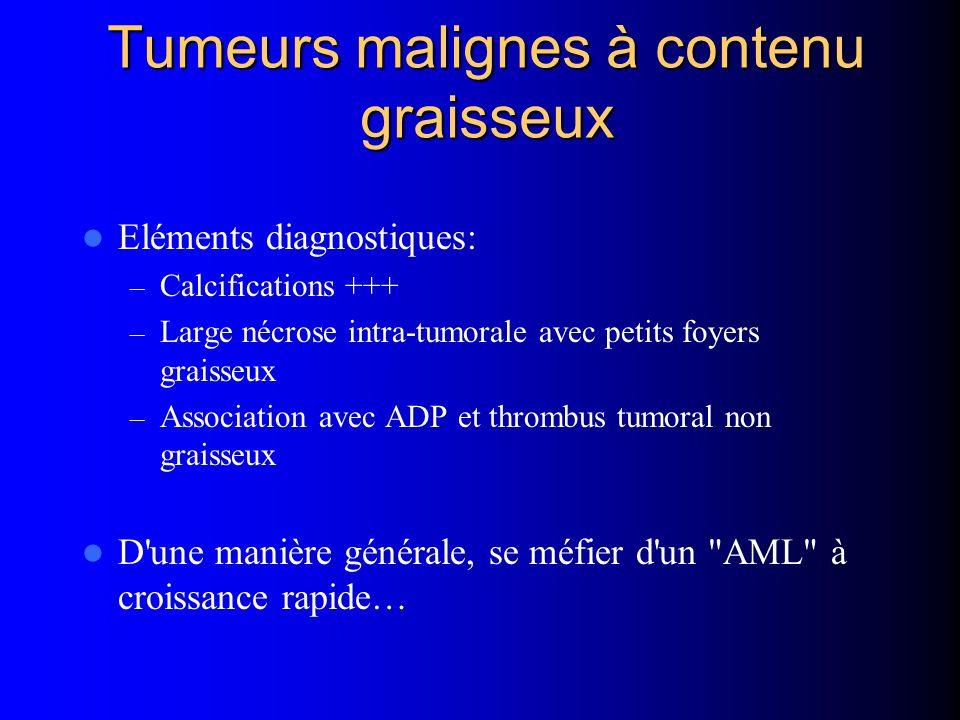 Tumeurs malignes à contenu graisseux Eléments diagnostiques: – Calcifications +++ – Large nécrose intra-tumorale avec petits foyers graisseux – Associ