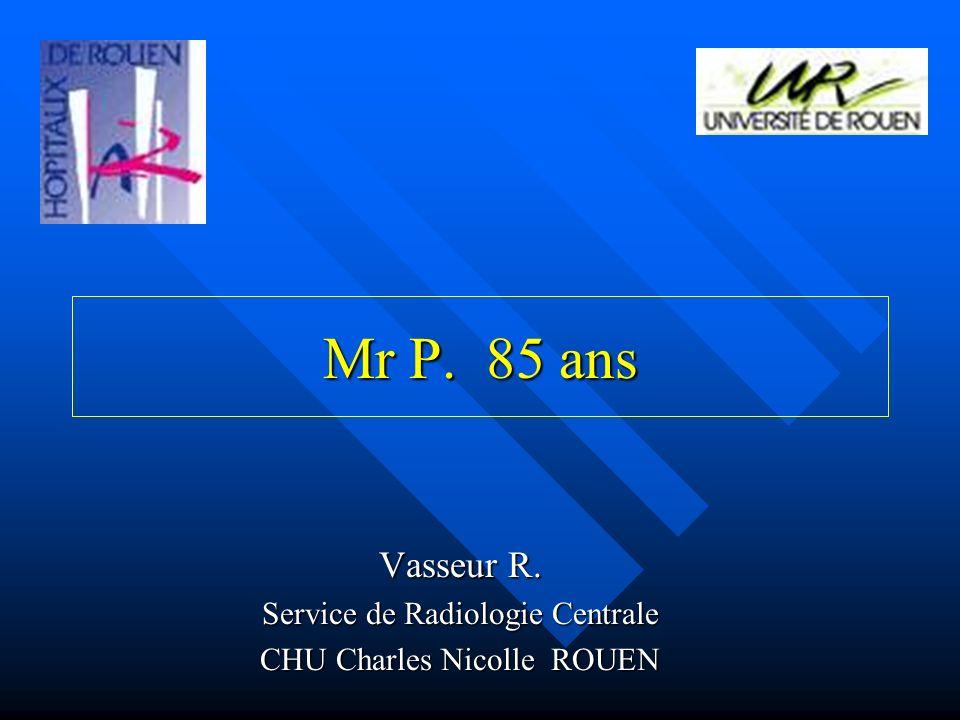 Mr P. 85 ans Vasseur R. Service de Radiologie Centrale CHU Charles Nicolle ROUEN