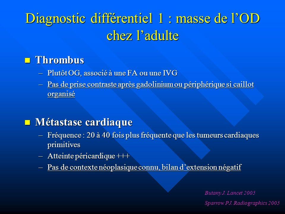 Diagnostic différentiel 1 : masse de lOD chez ladulte Thrombus Thrombus –Plutôt OG, associé à une FA ou une IVG –Pas de prise contraste après gadolinium ou périphérique si caillot organisé Métastase cardiaque Métastase cardiaque –Fréquence : 20 à 40 fois plus fréquente que les tumeurs cardiaques primitives –Atteinte péricardique +++ –Pas de contexte néoplasique connu, bilan dextension négatif Butany J.