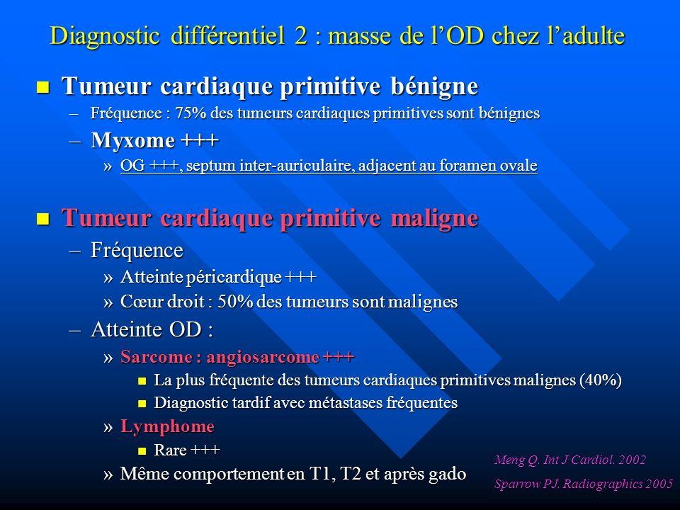 Tumeur cardiaque primitive bénigne Tumeur cardiaque primitive bénigne –Fréquence : 75% des tumeurs cardiaques primitives sont bénignes –Myxome +++ »OG +++, septum inter-auriculaire, adjacent au foramen ovale Tumeur cardiaque primitive maligne Tumeur cardiaque primitive maligne –Fréquence »Atteinte péricardique +++ »Cœur droit : 50% des tumeurs sont malignes –Atteinte OD : »Sarcome : angiosarcome +++ La plus fréquente des tumeurs cardiaques primitives malignes (40%) La plus fréquente des tumeurs cardiaques primitives malignes (40%) Diagnostic tardif avec métastases fréquentes Diagnostic tardif avec métastases fréquentes »Lymphome Rare +++ Rare +++ »Même comportement en T1, T2 et après gado Diagnostic différentiel 2 : masse de lOD chez ladulte Meng Q.