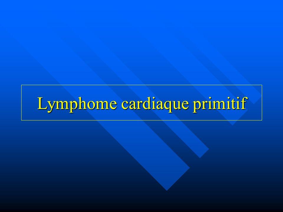 Définition et épidémiologie Définition Définition –Absence dinfiltration lymphomateuse en dehors du sac péricardique après autopsie complète –Masse tumorale dans le péricarde ou symptomatologie cardiaque dinfiltration cardiaque lymphomateuse au moment du diagnostic Épidémiologie Épidémiologie –Rare +++ –0,0017 à 0,28% des cancers –1,3% des tumeurs cardiaques primitives –0,5% des lymphomes extra-ganglionnaires –En augmentation depuis la fin des années 80 HIV +++ –Prédominance masculine –Age de survenue »Sujet immunodéprimés : 30-40 ans »Sujet immunocompétent : 60-70 ans Alter P.