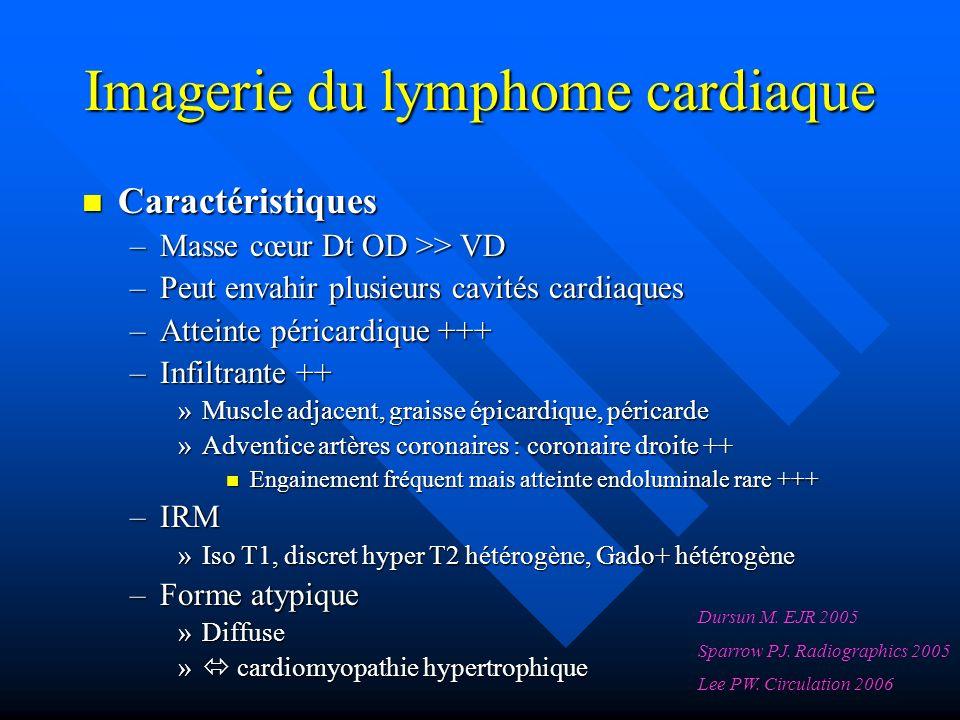 Imagerie du lymphome cardiaque Caractéristiques Caractéristiques –Masse cœur Dt OD >> VD –Peut envahir plusieurs cavités cardiaques –Atteinte péricardique +++ –Infiltrante ++ »Muscle adjacent, graisse épicardique, péricarde »Adventice artères coronaires : coronaire droite ++ Engainement fréquent mais atteinte endoluminale rare +++ Engainement fréquent mais atteinte endoluminale rare +++ –IRM »Iso T1, discret hyper T2 hétérogène, Gado+ hétérogène –Forme atypique »Diffuse » cardiomyopathie hypertrophique Dursun M.