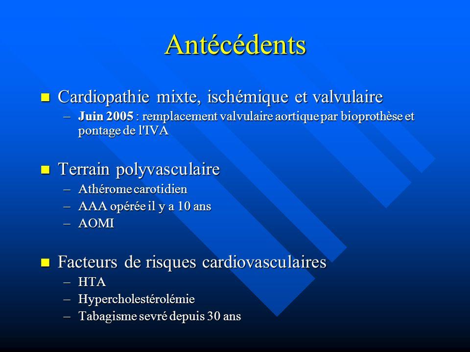 Antécédents Cardiopathie mixte, ischémique et valvulaire Cardiopathie mixte, ischémique et valvulaire –Juin 2005 : remplacement valvulaire aortique par bioprothèse et pontage de l IVA Terrain polyvasculaire Terrain polyvasculaire –Athérome carotidien –AAA opérée il y a 10 ans –AOMI Facteurs de risques cardiovasculaires Facteurs de risques cardiovasculaires –HTA –Hypercholestérolémie –Tabagisme sevré depuis 30 ans