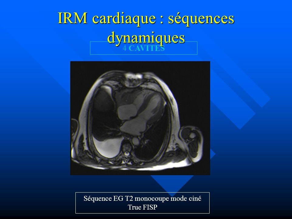 IRM cardiaque : séquences dynamiques Séquence EG T2 monocoupe mode ciné True FISP 4 CAVITES