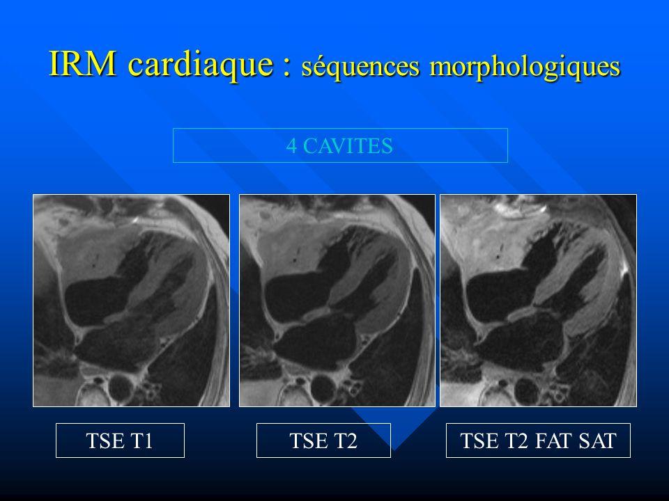 IRM cardiaque : séquences morphologiques PETIT AXE TSE T1 TSE T2 TSE T2 FAT SATTSE T1 FAT SAT