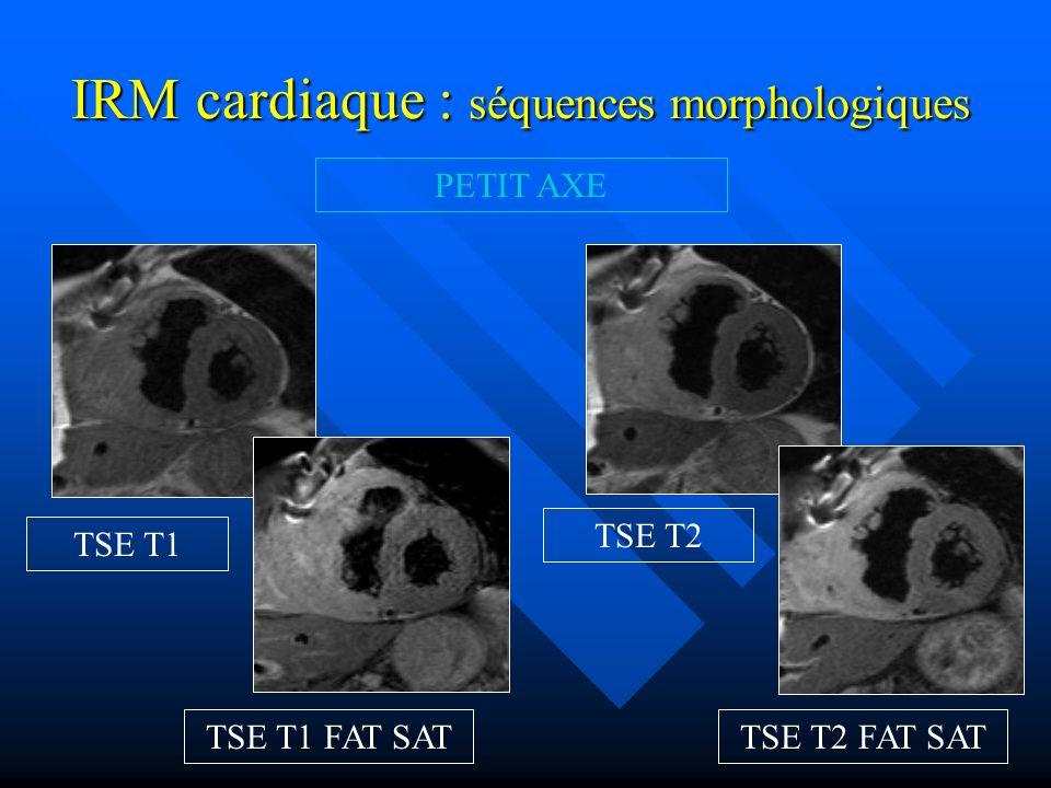 IRM cardiaque : injection de gadolinium 4 CAVITES Séquence de perfusion premier passage