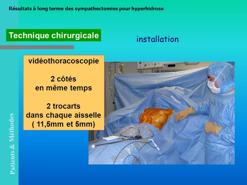 Technique chirurgicale installation Résultats à long terme des sympathectomies pour hyperhidrose vidéothoracoscopie 2 côtés en même temps 2 trocarts d
