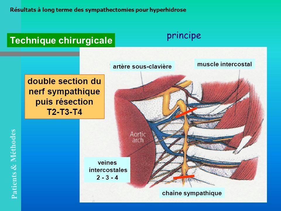 Technique chirurgicale artère sous-clavière muscle intercostal chaîne sympathique veines intercostales 2 - 3 - 4 Résultats à long terme des sympathect