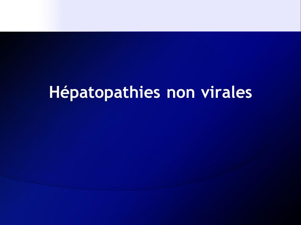 Hépatopathies non virales