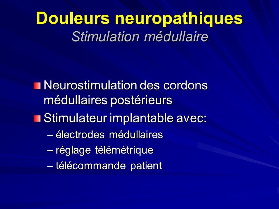 Douleurs neuropathiques Stimulation médullaire Neurostimulation des cordons médullaires postérieurs Stimulateur implantable avec: –électrodes médullai