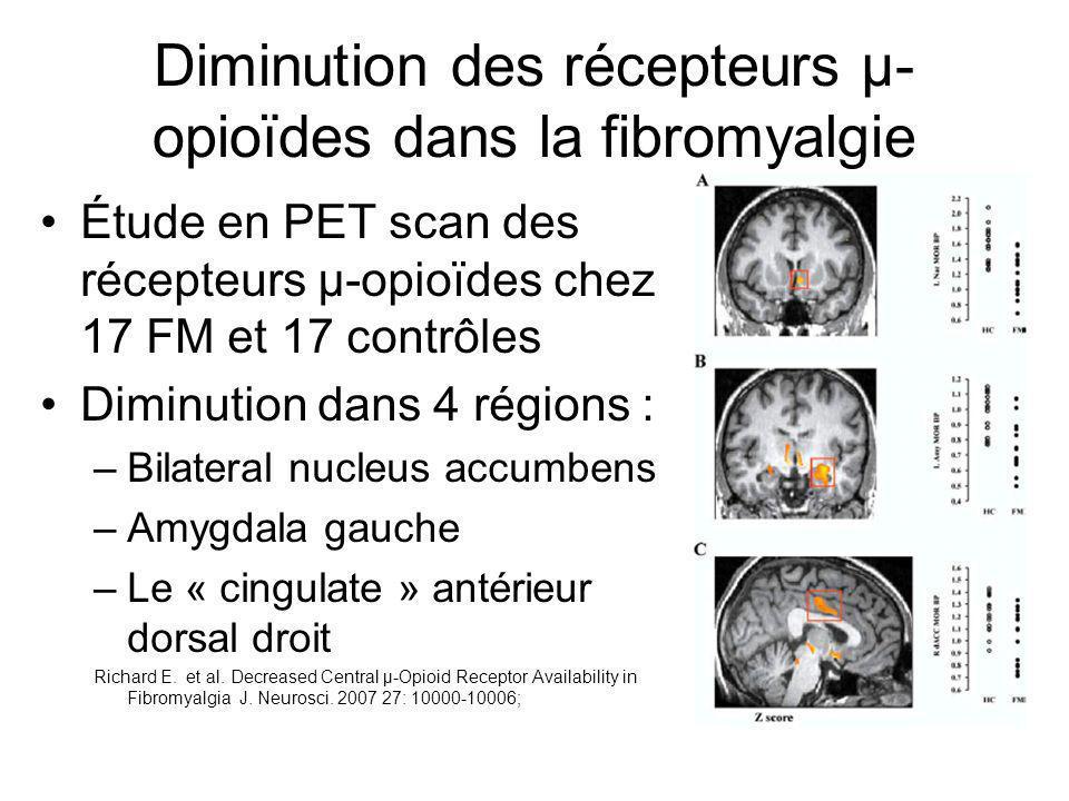 Diminution des récepteurs µ- opioïdes dans la fibromyalgie Étude en PET scan des récepteurs µ-opioïdes chez 17 FM et 17 contrôles Diminution dans 4 ré