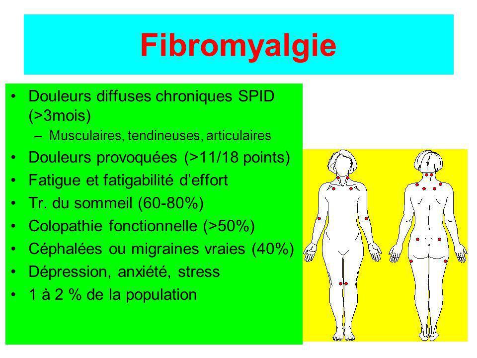 Fibromyalgie Douleurs diffuses chroniques SPID (>3mois) –Musculaires, tendineuses, articulaires Douleurs provoquées (>11/18 points) Fatigue et fatigab