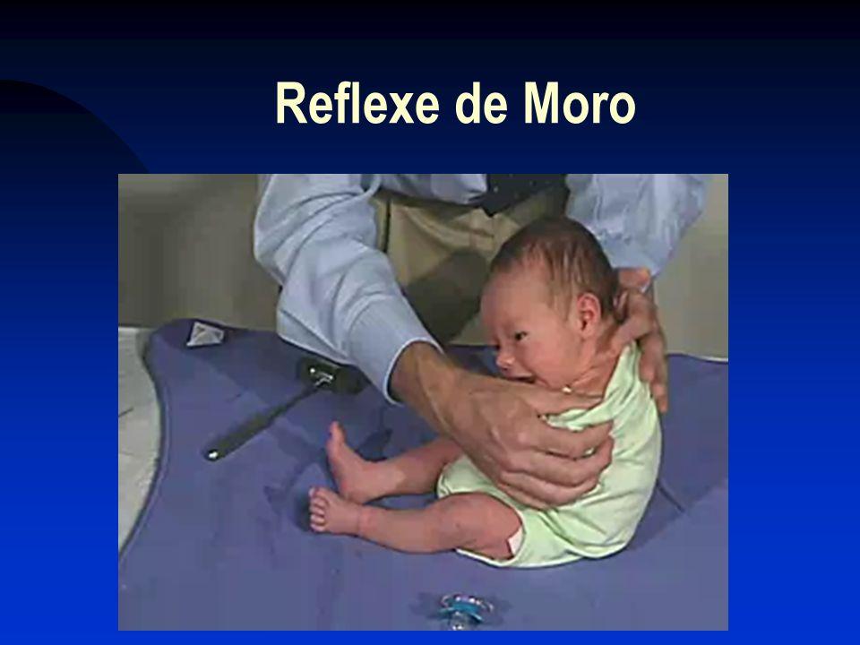 Reflexe de Moro